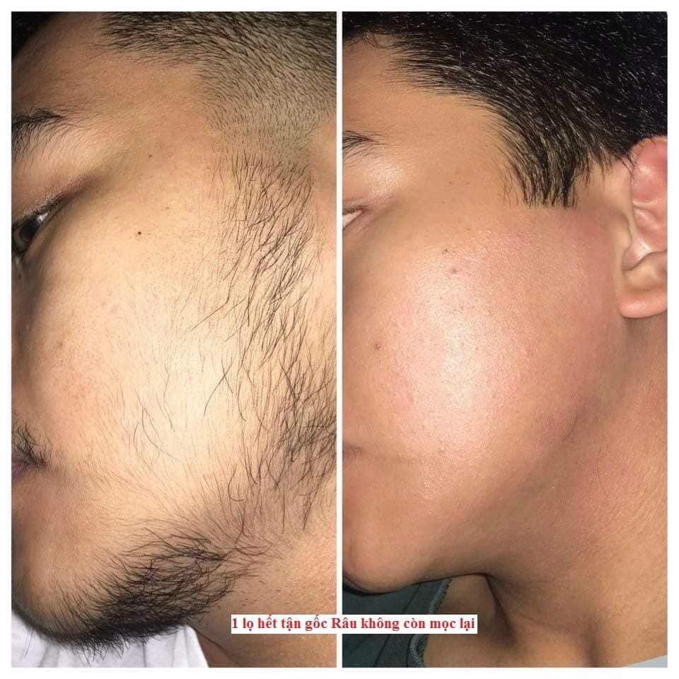 Làm sạch râu với tẩy lông Mamen